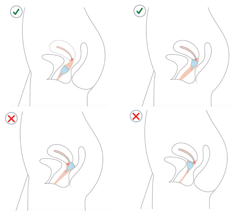 Correct and incorrect placement of menstrual cup illustration