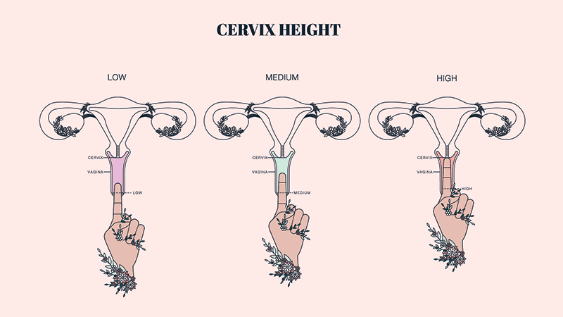 Cervix height illustration